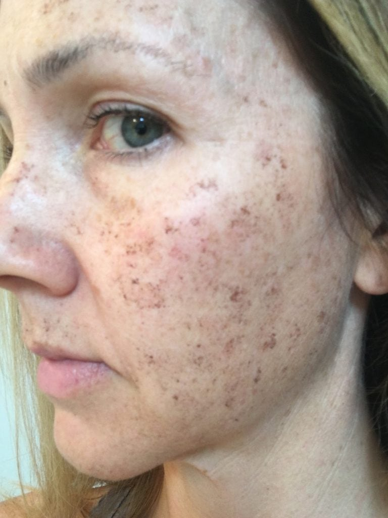 side profile of woman's face after IPL treatment