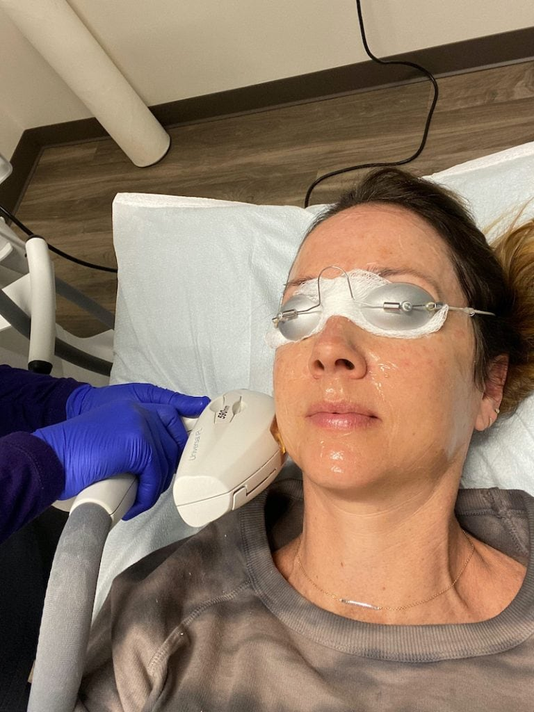 woman laying down wearing a grey sweatshirt, with goggles, receiving IPL treatment