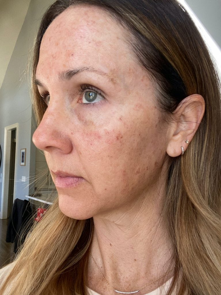 side profile of woman's face with long brown hair after IPL