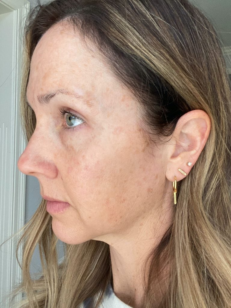 side profile of woman 1 week after IPL treatment