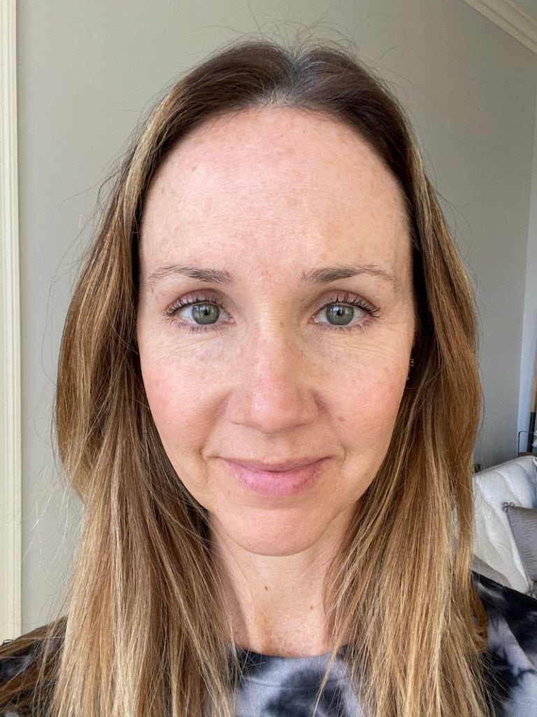 woman with long brown hair looking into camera after IPL treatment results