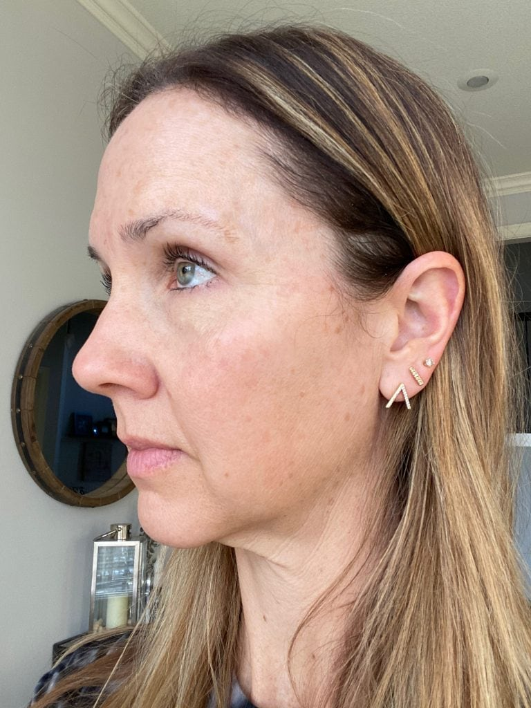 side view of woman's face after IPL treatment