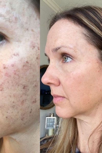 side by side of woman's face before and after of IPL treatment